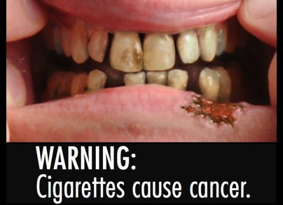 cigarette warning label mouth cancer That's not funny! In December 2007, Chris Forcand was arrested in his ...